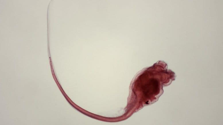 urochordata (tunicate larva)