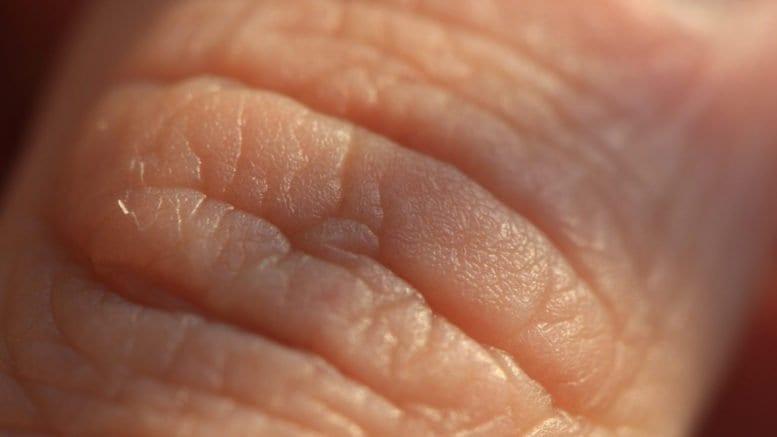 mammalian skin