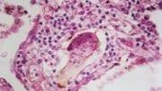 Photo by Pulmonary Pathology