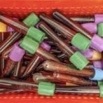How to Avoid Haemolysis of Blood Samples
